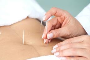 cropped-acupuntura-foto1.jpg